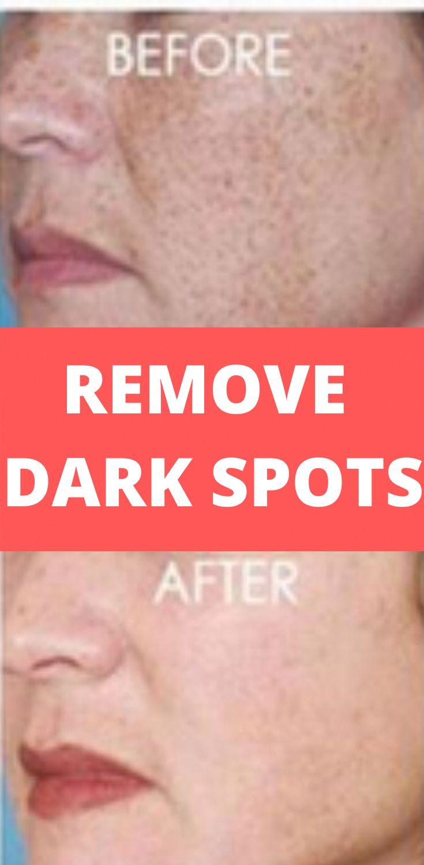 Age spots removal in 2020 remove dark spots age spot