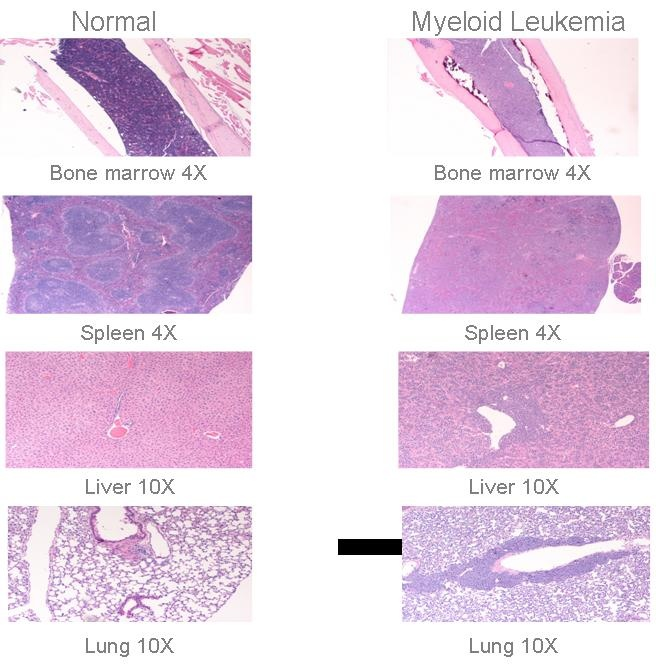 cancer cells vs normal cells Cancer cells develop out of normal body cells and tissues over years, damage to the dna of healthy cells can lead to the formation of malignant tumors.