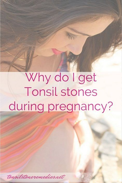 how to get tonsil stones out without gagging