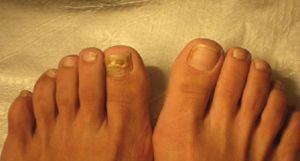 los hongos de las uñas