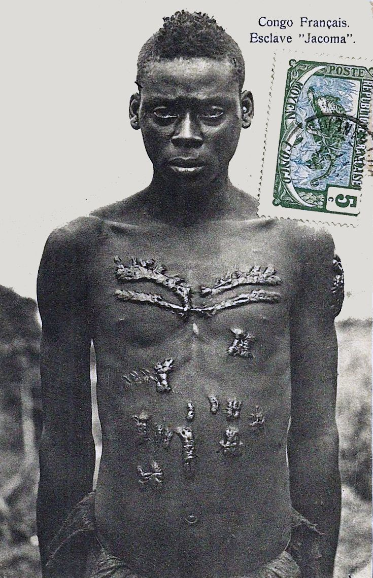 african body modification Body modification south africa 147 likes send us an email with your body modifications done in south africa lets see what you've got.