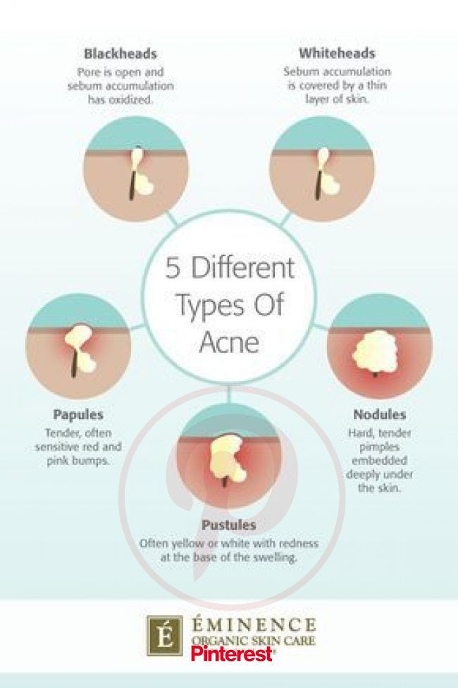 Types Of Acne: The Differences Between Your Bumps And Blemishes in 2020 | Types of acne, Different types of acne, Skin care #nails,#nailart,#beauty,#b   Types Of Acne: The Differences Between Your Bumps And Blemishes in 2020 | Types of acne, Different types of acne, Skin care..