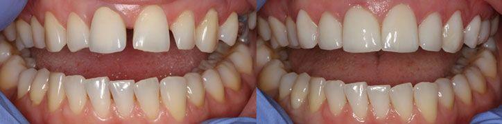 Dental Estetic Studio ist eine Klinik, in der wir Zahnprothetik (Zahnkronen, Brücken, Veneers und Prothesen) ausschließlich von höchster Qualität und Ästhetik anfertigen. Wir machen keinen dentalen Massentourismus, sondern ausschließlich individuelle Patientenbesuche und deshalb widmen wir uns jeder Prothetik und jedem Patienten einzeln. http://www.zahn-veneers-kroatien.at/
