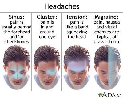 Types of Headaches - A Visual Description //// Understanding the typical distribution of pain for the main types of headaches can help determine what types of headaches you are experiencing.