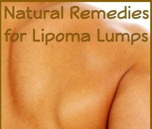 Natural Remedies For Getting Rid Of Lipoma