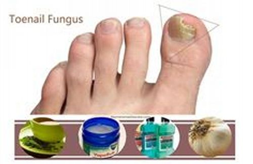 Now the question is how Listerine can be used in removing fungus infection that gets appear in toenails. There may be several methods to use Listerine for removing toenail fungus infection but the most common and used trick of Listerine is to be used as feet soak remedy for feet care. Foot soak is one of ancient and traditional way of taking good care of feet and Listerine is very convenient to use as this remedy.