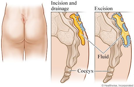 Treatment methods for a pilonidal cyst