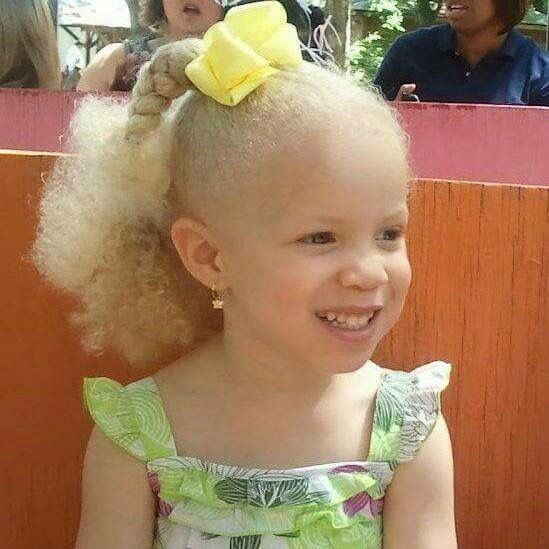 1000+ Images About Albinos On Pinterest