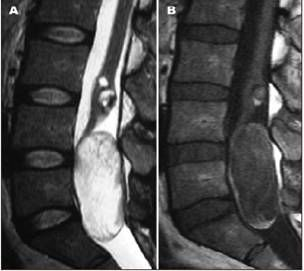 Acquired Epidermoid Cysts of the Cauda Equina after lumbar puncture -  hypodense in T1 and hyperdense in T2. T1 C+ (Gd): no enhancement or a thin rim of capsular enhancement  DWI: bright (with corresponding low intensity on ADC map) - Signal intensity may be homogeneous or heterogeneous according to the variable water, lipid and protein composition of the cyst.
