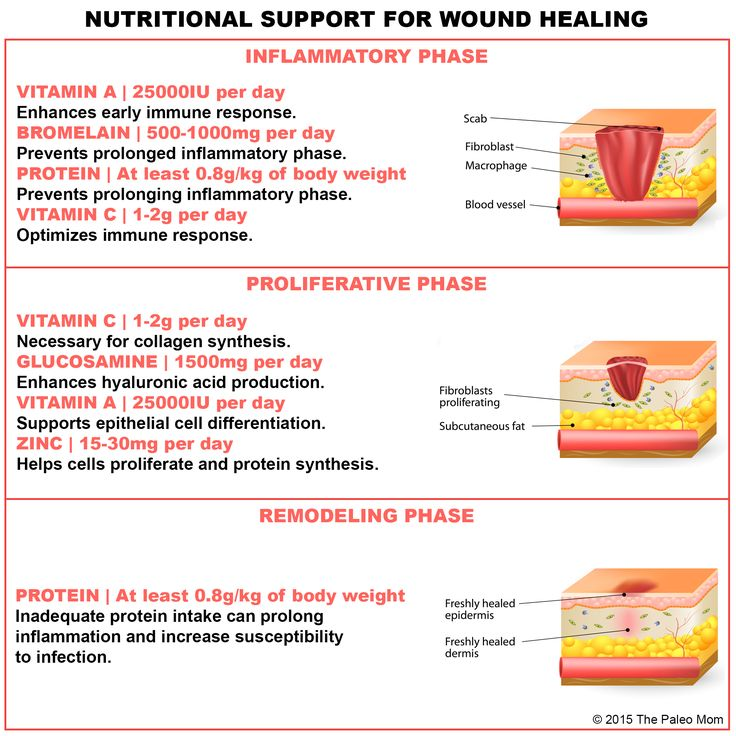 Nutritional Support for Wound Healing | The Paleo Mom