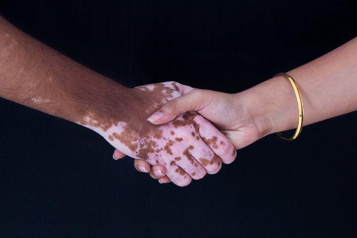 vitiligo tedavisi  için kür - ibrahim saraçoğlu