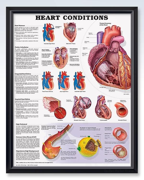 Heart Conditions 20x26 Anatomy Poster