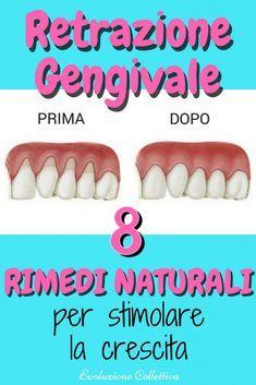 #retrazionegengivale #rimedinaturali #evoluzionecollettiva