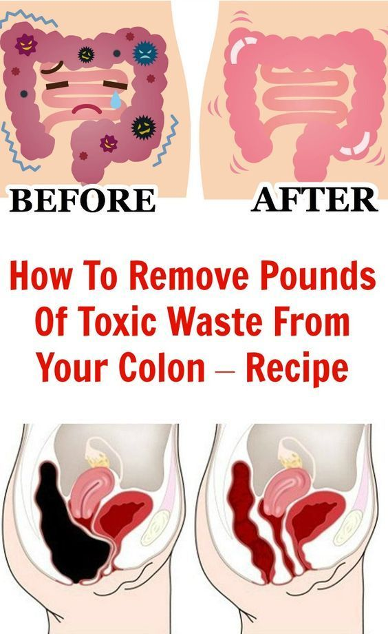 How To Remove 20 Pounds of Toxic Fat From Your Colon!! (RECIPE)