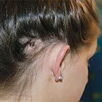 Single Sided Deafness Causes and Treatment - http://www.healtharticles101.com/single-sided-deafness-causes-and-treatment/#more-1708