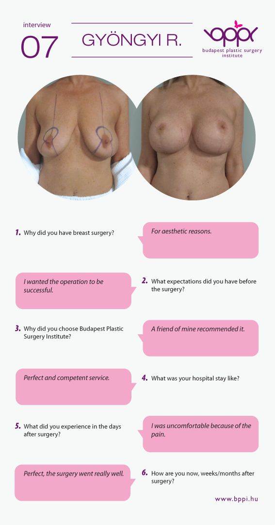 Gyongyi had combined breast surgery. The after surgery ... C Cup Vs D Cup Implants