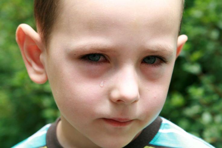 Επιπεφυκίτιδα στα παιδιά