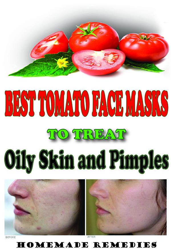 DIY Tomato Face Masks To Treat Naturally Oily Skin And Pimples