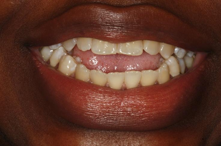 zenthea invisalign dental york