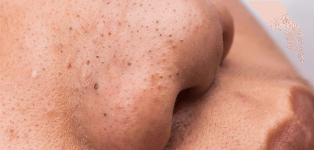 ULTIMATE GUIDE ON HOW TO GET RID OF BLACKHEADS ON YOUR CHEEKS OR NOSE  ULTIMATE #GUIDE #ON #HOW #TO #GET #RID #OF #BLACKHEADS #ON #YOUR #CHEEKS #OR #NOSE #WartsOnNose