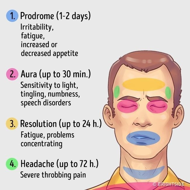 MIGRAINE: All symptoms of this severe headache occur during a migraine attack that progresses through four main stages.