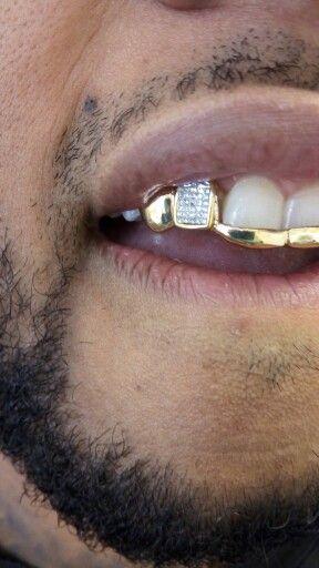 Diamonds and gold grillz. Princess cut invincible setting