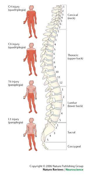 Wk 9: Spinal Cord Injury, Burn Injury, Septic Shock - Medical Surgical Nursing 211sp09