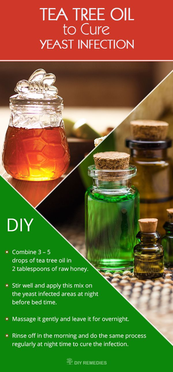 Tea tree oil is an excellent natural remedy that widely used to treat fungal infections, including yeast infection.