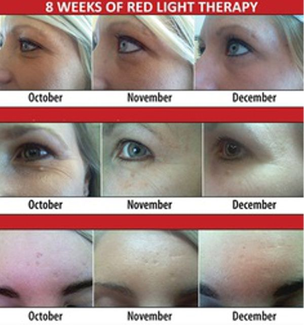 Visit http://revealgreatskin.com/red-light-therapy to learn more about the benefits of red light therapy