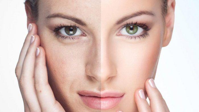 Cómo Hacer Un Peeling En Casa Para Una Piel Perfecta Eye Bags Treatment Natural Face Pack Best Face Products