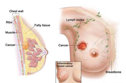cara mengobati kanker payudara pada wanita Kanker payudara adalah salah satu penyakit berbahaya yang sudah menelan banyak korban jiwa. Banyak pasien kanker payudara yang tidak tertolong jiwanya karena keterlambatan dalam melakukan pengobatan dan ketidaktepatan dalam melakukan pengobatan. http://obatkutilkelaminampuh.bcz.com/2014/07/28/cara-mengobati-kanker-payudara-pada-wanita/