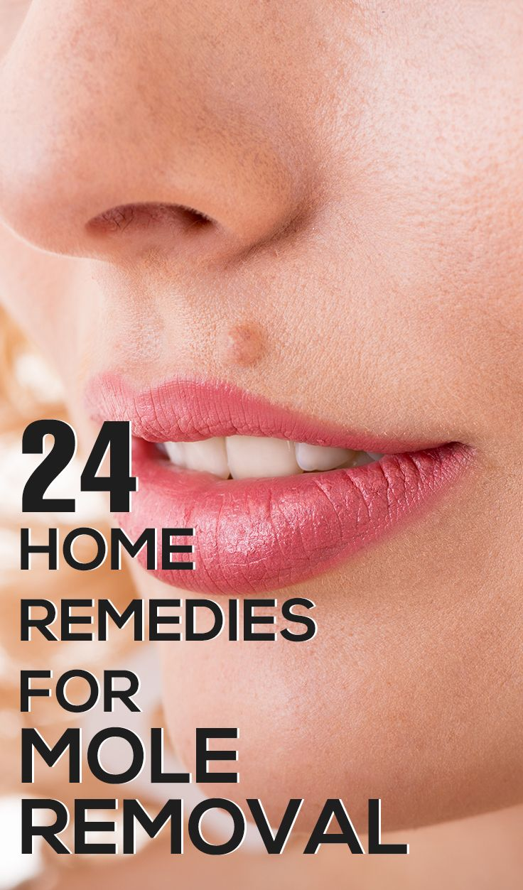 24 Effective Home Remedies For Mole Removal. These are amazing! It's a great thing especially for people like me who get a mole every time this certain spider bites me. :/ my struggle.