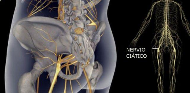 La ciática es un término que describe los síntomas de dolor que comienzan en la parte baja de la espalda y se extienden a lo largo de las nalgas!!!!