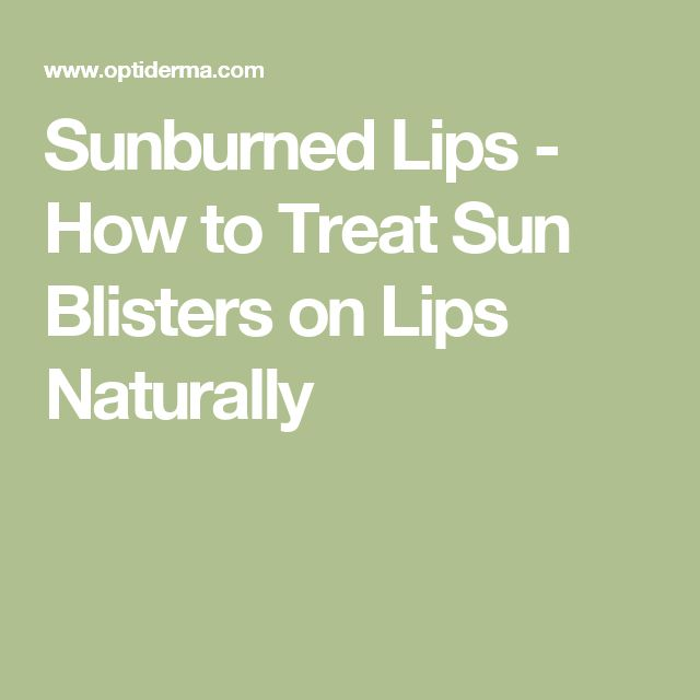 Sunburned Lips - How to Treat Sun Blisters on Lips Naturally