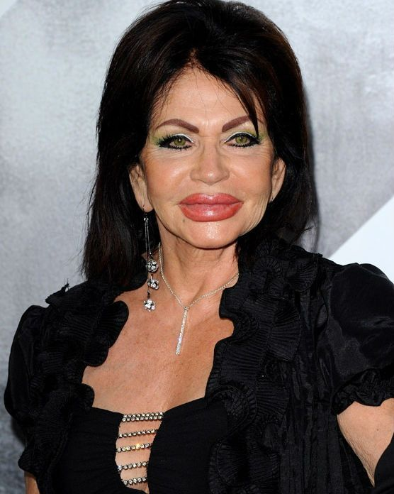 Jackie Stallone: I Look Like a Chipmunk with a Mouthful of Nuts