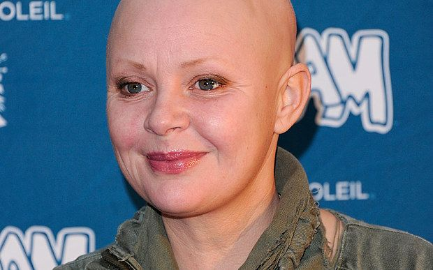 Gail Porter, has refused to wear a hat or wig to hide the condition which she has suffered from since 2005. Read about hair loss at ideaas.eu