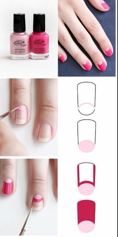 Para uñas curvadas