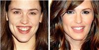 Τα χείλη των διάσημων σταρ: πριν και μετά το κολλαγόνο!