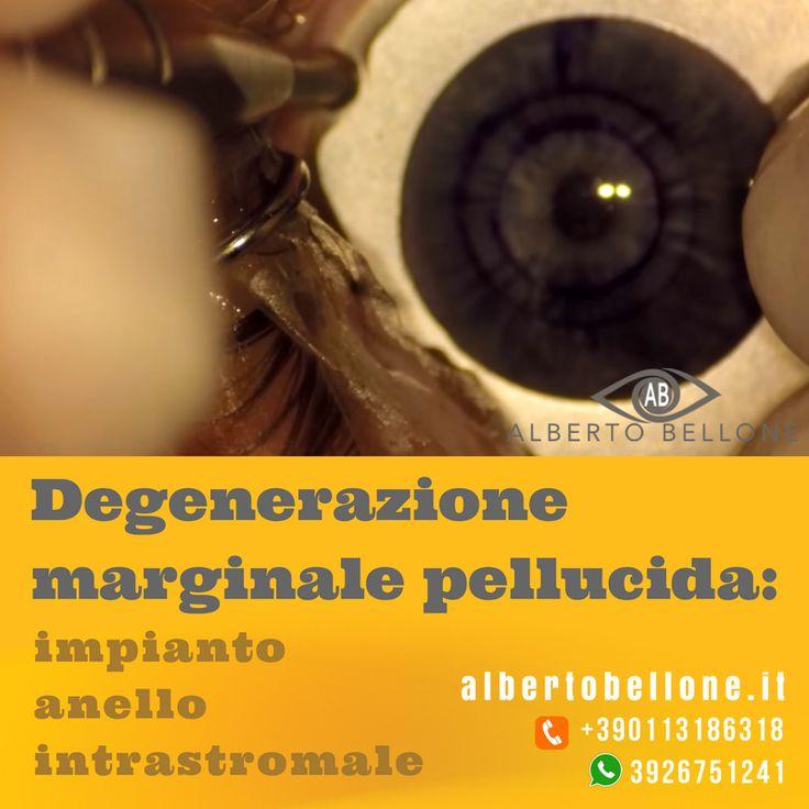 Degenerazione marginale pellucida: impianto anello intrastromale - Dr. Alberto Bellone - Oculista Torino e Milano  La degenerazione marginale pellucida è una variante del cheratocono caratterizzata da astigmatismo elevato contro regola e una relativa conservazione dello spessore corneale. La terapia consiste nell'introduzione di Keraring nello spessore corneale e conseguente appiattimento della stessa. 💯💯 --- Visita: https://youtu.be/198v_KfJMmo --- @alberto.bellone.oculista…