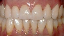Porcelain Crowns -CEREC After: Smile restored with placement of 8 Upper All Porcelain Crowns (Caps). Gumline and incisal edges are now uniform. Patient now has longer, better shaped teeth to enhance the smile line and aid in chewing/biting function.
