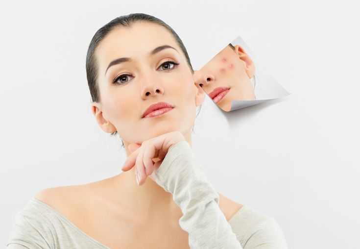 Many people mistakenly believe that breakouts are caused by chocolate treats or greasy foods. In actuality, pimples aren't caused by diet, stress or even dirty skin. Acne is triggered by hormonal changes (most common in puberty and pregnancy), hereditary factors or certain types of makeup. The good news is that you can enjoy your dessert without worrying about your face! Limit your serving to 1 ounce of dark chocolate per day, which is high in antioxidants and good for your skin.