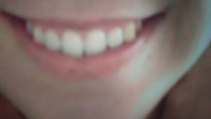 Día 24, una sonrisa
