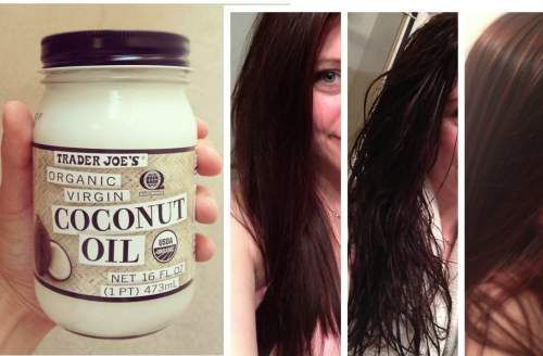 how to get rid of dandruff on dry hair