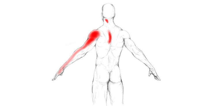 Infraspinatus Muscle Pain And Trigger Points