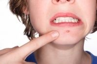 Pimples – How to solve the problem - DrWirth Shop