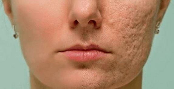 Maska na obličej může bojovat proti akné, skvrnám, zabarvení a proti jizvám na obličeji. Můžete si ji jednoduše připravit. Postupujte podle přiloženého návodu. ingredience K přípravě masky budete potřebovat následující suroviny: 1 lžičku přírodního medu 1 lžičku mletého muškátového oříšku 1 lžičku citrónové šťávy 1 lžičku mleté skořice postup Smíchejte všechny ingredience v misce do …