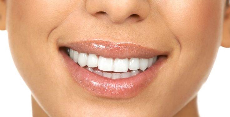 witte-tanden-recept-budgi