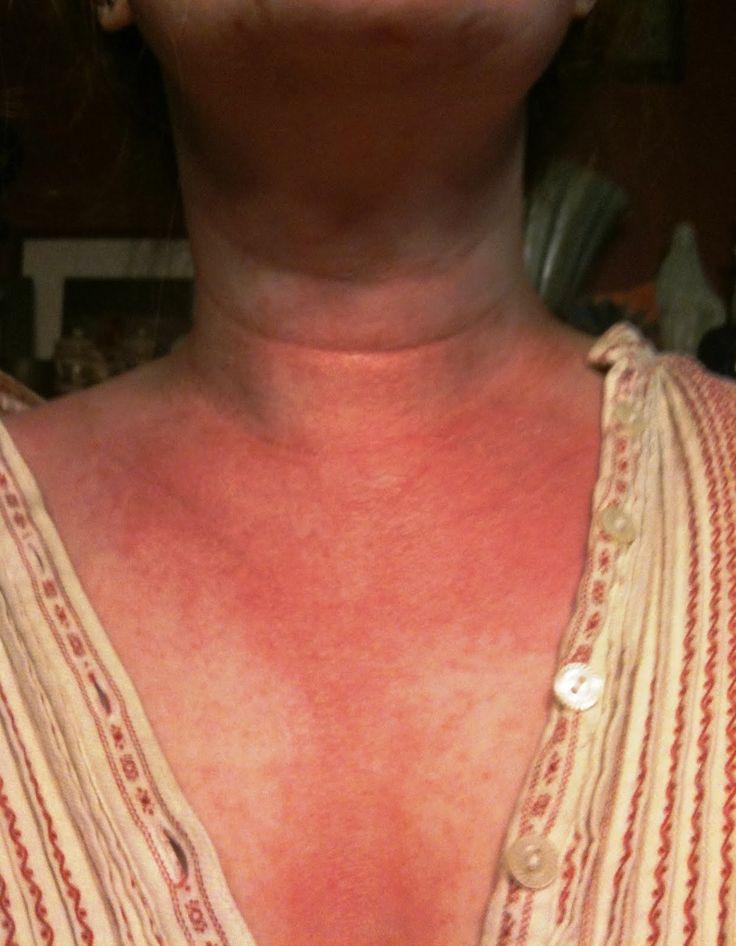Natural Remedy For Underarm Heat Rash
