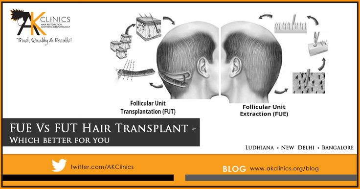 Difference between FUT and FUE Hair transplant.
