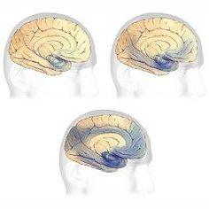 Les 7 stades de la maladie d'Alzheimer (Échelle de détérioration globale de Reisberg) | Psychomédia                                                                                                                                                                                 Plus